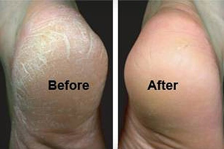 Is It Possible to Have Permanent Callus Removal?