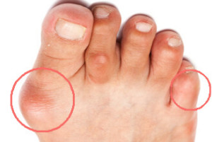 bunions on foot of patient, callus on side of big toe