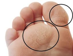 callus skin on feet