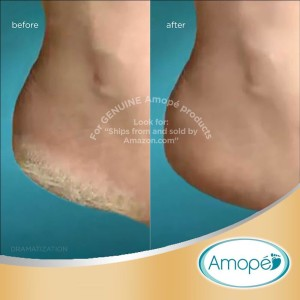 amope pedi perfect before and after