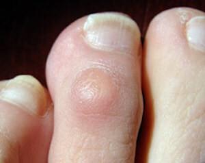 corn on little toe treatment